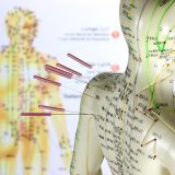 Akupunktur Dortmund